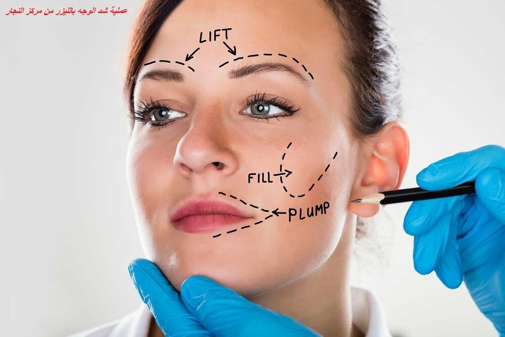 تكلفة -عملية- شد -الوجه