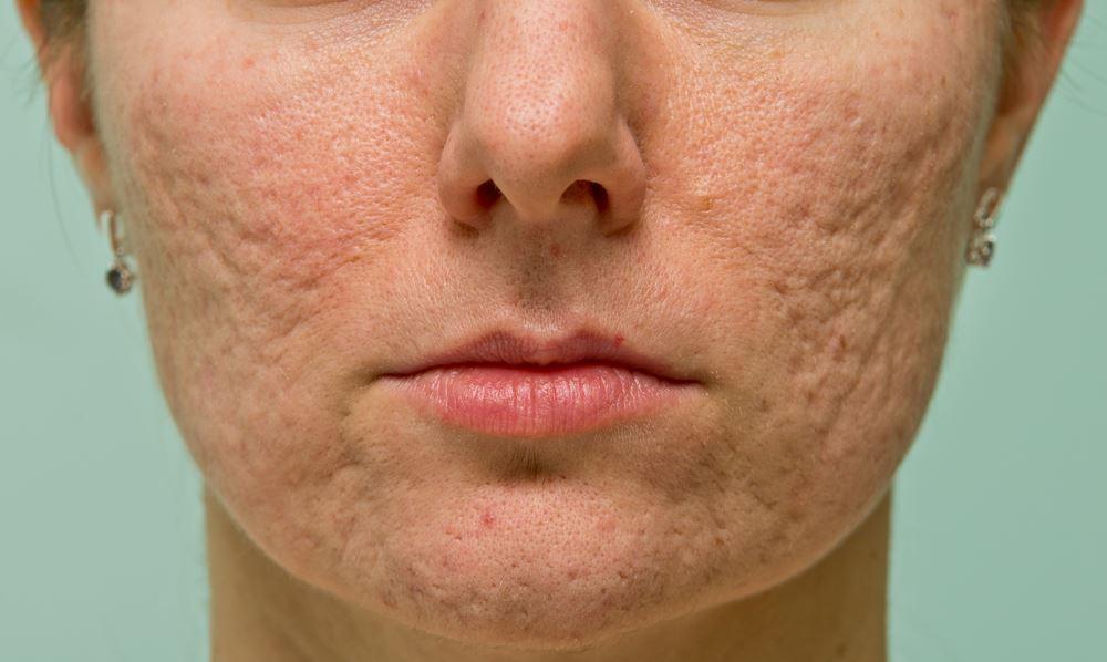 كيفيه علاج اثار الجروح و الحبوب من الوجه ؟